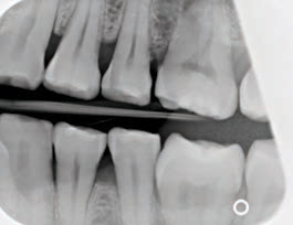 FIGURE 11. This bitewing image has a clear diagonal area in the right corner, thus preventing the display of diagnostic information from the maxillary second molar.
