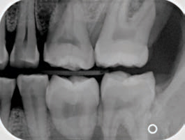 FIGURE 12. A premolar bitewing in which the distal of the canine and first premolars are not imaged in the projection.