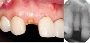 FIGURE 1A and FIGURE 1B. Preoperative clinical photo (A). Periapical X-ray prior to extraction of #7 (B).