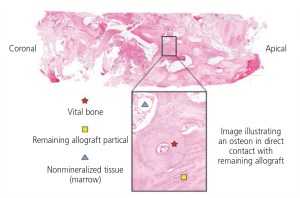 FIGURE 4. Histologic evidence from core sample after a socket augmentation procedure — using d-PTFE — illustrating vital bone formation.