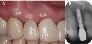 FIGURE 6A and FIGURE 6B. Six months after implant rehabilitation with screwretained single crown (A). Radiographic view (B).