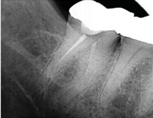 FIGURE 3A. As seen here, this lower molar with prior endodontic therapy does not meet the standards of contemporary endodontic practice.