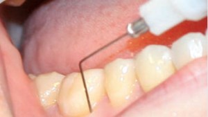 FIGURE 3. Type 3 tissues, or high-density tissues with very low tissue compliance, are found in periodontal ligaments.