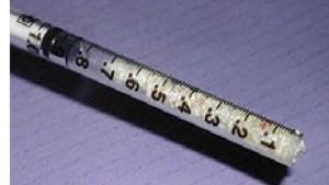 FIGURE 11. A tuberculin syringe is used to insert bone into the sinus.