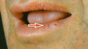 FIGURE 6. This patient presented with squamous cell carcinoma of the lip.
