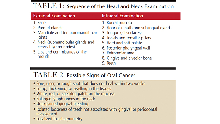 Screening for Oral Cancer - Decisions in Dentistry