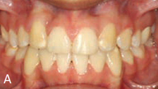 FIGURE 13A. Posttreatment intraoral images.