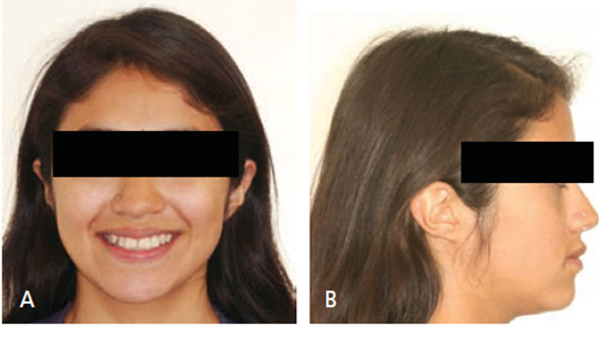 FIGURES 1A and 1B. Pretreatment extraoral facials.