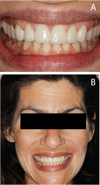 FIGURES 7A and 7B. The patient reported being pleased with the final results. The therapy eliminated hypersensitivity and improved oral function and appearance.