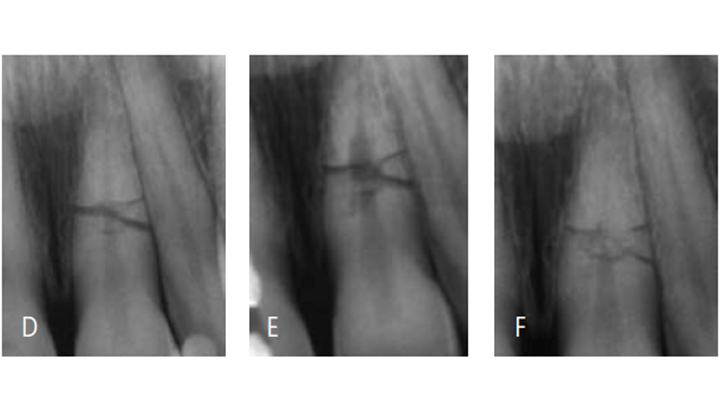 FIGURES 3D through 3F. A periapical radiograph of a root fracture a few hours after the injury; it was established that both fragments were in good approximation of each other. Splinting was done for two weeks (D). At the nine-month recall, internal root resorption was noted, but no defect in the periodontal ligament or adjacent bone, indicating a normal healing process (E). At the five-year recall, endodontic treatment wasn't needed (F).
