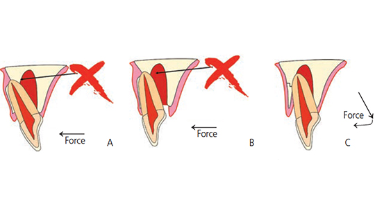FIGURES 4A through 4C. In lateral luxation injuries of maxillary teeth, the apex is frequently pushed through the cortical plate facially (A). In order to reposition the tooth, it has to be released prior to moving the crown forward B and C).
