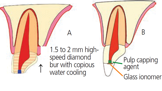 FIGURES 2A through 2B. Schematic diagrams of minimal pulpotomy, in which a 2-mm reservoir is cut with a high-speed diamond bur and copious water cooling, followed by the placement of calcium hydroxide mixed with sterile water (A). Glass ionomer or a protective liner is placed over the pulp capping agent to ensure it remains in place during etching and bonding (B).