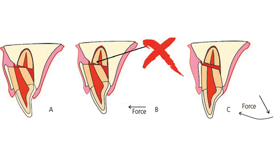 FIGURES 3A through 3FC. Schematic drawing of a common situation after root fracture — the crown portion is displaced inward towards the palate, and the fractured piece is stuck to the facial cortical plate (A). It is impossible to move the coronal portion back to its original location without releasing it from the cortical plate (B). This is accomplished by pulling the coronal portion down and repositioning it (C).
