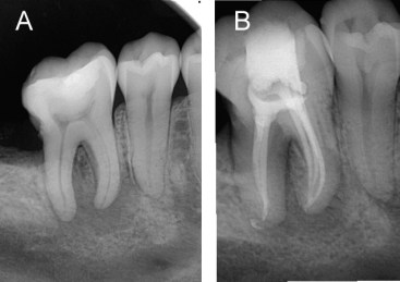 Innovations in Endodontic Cleaning and Disinfection