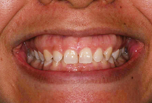 Lip Movement Gingival Display