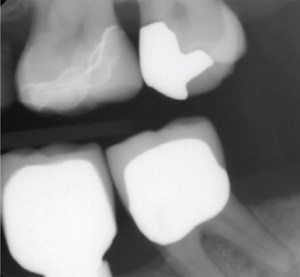 Radiograph for Digital Dentistry