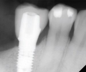 Digital Dentistry Implant Site
