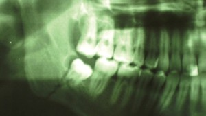 Third Molar Site