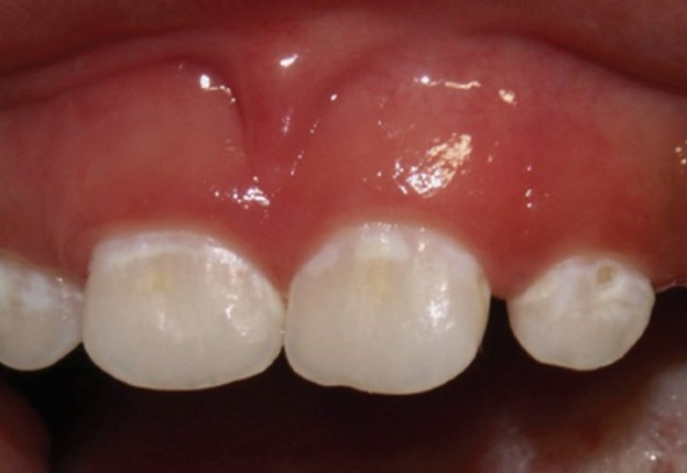 Pathways for the Management of Early Childhood Caries course image