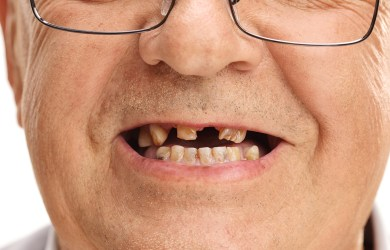 Mouth of a senior with missing teeth