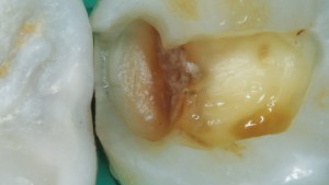 Tooth after caries removal
