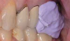 Gingival retraction method