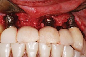Teeth restored with a cement-retained bridge, implants siteswere treated for peri-implantitis.