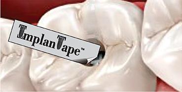 ImplanTape