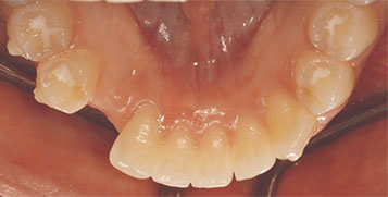 Preoperative occlusal view.