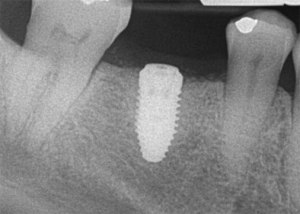 Postoperative radiograph of dental implant.