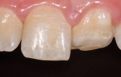 Maxillary central incisor.