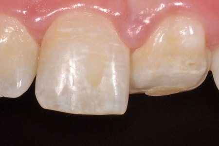 Conservative Restoration of a Maxillary Central Incisor With