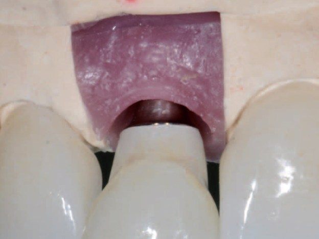 Clinical Considerations for Choosing Implant Abutment Connection Interfaces course image