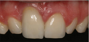 Socket and contraindicated for immediate implant placement.