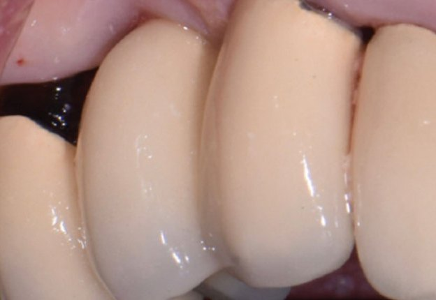 Avoiding and Managing Implant Complications course image
