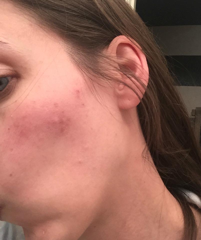 Skin on Cheek Before | Decorchick!®