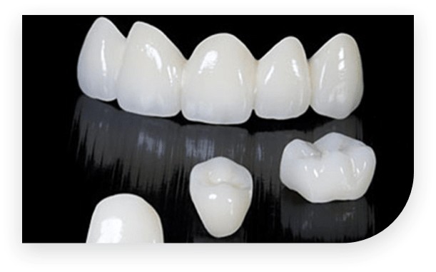 cosmetic crowns vs veneers