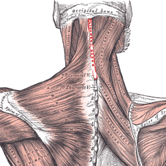 Nerves In Neck And Shoulder Diagram Wiring For Samsung Dryer How To Relieve Pain Treatment Chronic Deep Soft Tissue Anatomy Involved