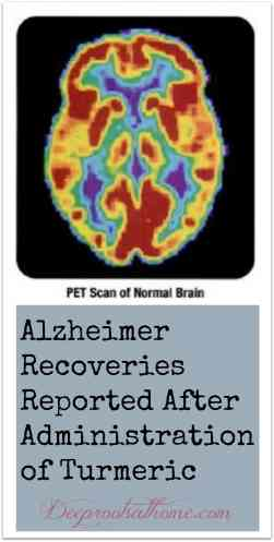 Alzheimer Recoveries Reported After Administration of Turmeric, cognitive powers, spice of remembrance, spice islands, Kate Humble, quote, turmeric, spice, powder, root, Bulk Herb Store, melanoma, liver detox, Lilly's green and white pills, weight management, chemo enhancer, curcumin, capsule making machine, world's healthiest foods, herbal remedies, lost healing arts, disease, restoring health, cancer, Alzheimer's, anti-inflammatory, health benefits, DIY, homemaking, homemaker, keeper at home, healthy living, medicine cabinet, natural medicine, alternative medicine, make your own capsules, anti-depressents, Big Pharma, drug dependence, suicide, link to autism, scientific studies, herbs, plants, naturally-occurring remedies, terrible side-effects, pharmaceuticals, Alzheimer-prevention, painkiller, natural mood elevator, mask symptoms, Sexual dysfunction, reduced sex drive, impotence, premature birth, autism, Prozac Addiction, research science, India, no-side-effects, medications, side benefits, physiological pathways, the body, high margin of safety, chemotherapy agents, potential for healing, FDA approval, patentability, profitability, American history, Declaration of Independence, Congress, natural substances, patent protection, search and review, National Library of Medicine, bibliographic database, PubMed, polyphenol, Cancer Stem Cells, Protecting Against Radiation, Liver Disease, Liver Cancer Preventing, pharmaceutical industry revenue, knowledge, drugging America, disclaimer, pre-made turmeric Capsules, make my own, DIY, organic turmeric, capsule machine, safe natural alternatives,