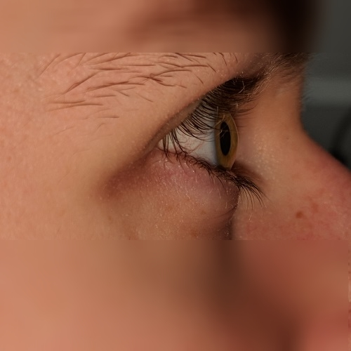 eye rubbing profile keratoconus