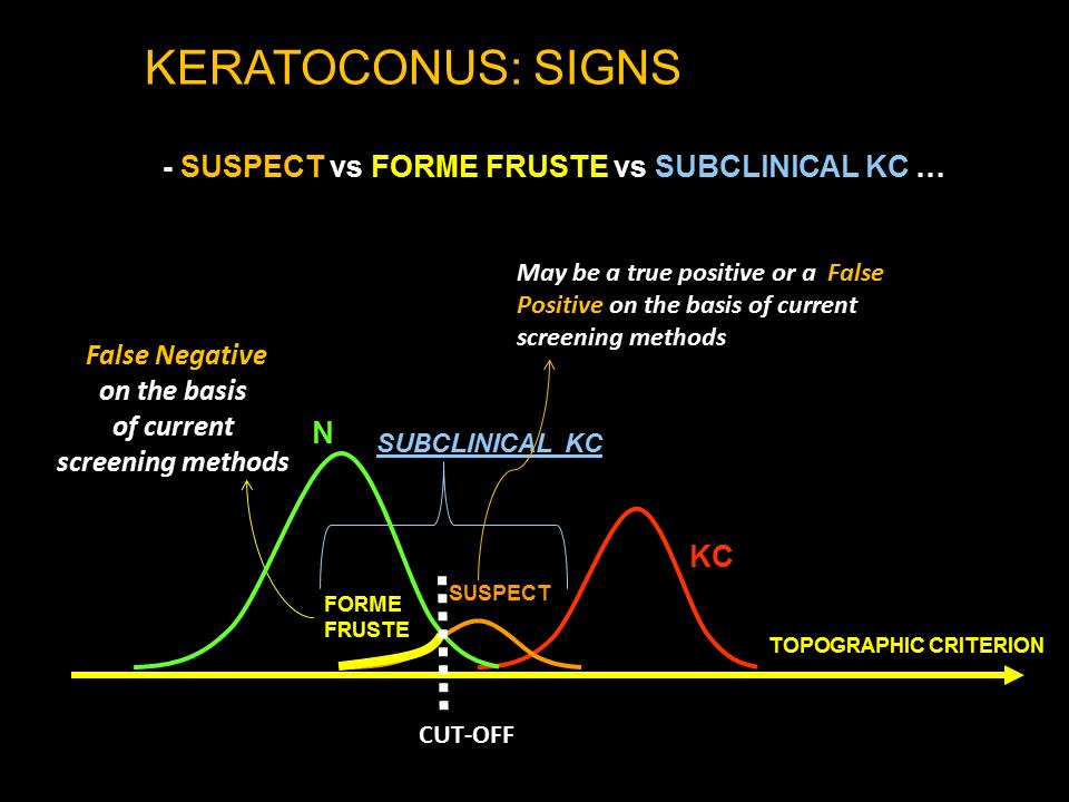 Keratoconus suspects, form fruste and eye rubbing | Defeat Keratoconus