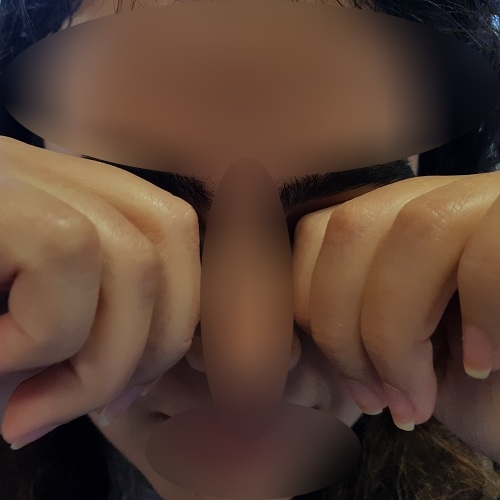 eye rubbing with the knuckles