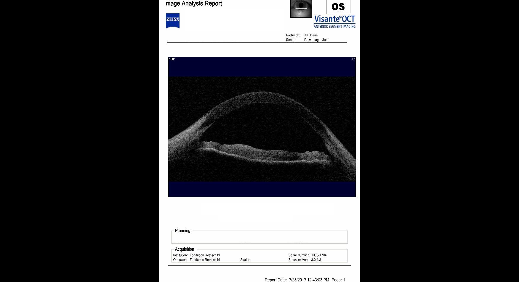 anterior segment mapping, cross section, OCT visante, pellucid marginal degeneration, PMD