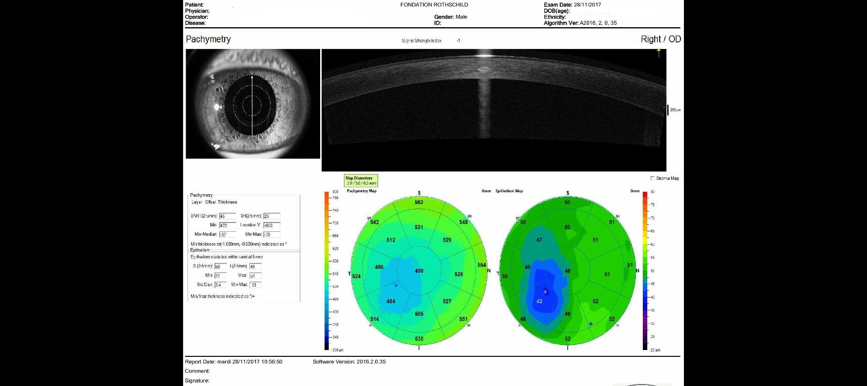 OCT high resolution forme friste keratoconus