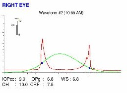 ocular response analyzer forme fruste keratoconus
