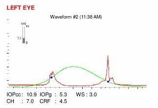 corneal biomechanics impaired on a ocular response analyzer instrument