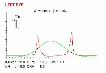 Ocular Response Analyzer (ORA) map,