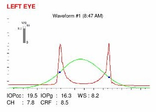 ocular response analyzer ORA pellucid marginal degeneration PMD low hysteresis