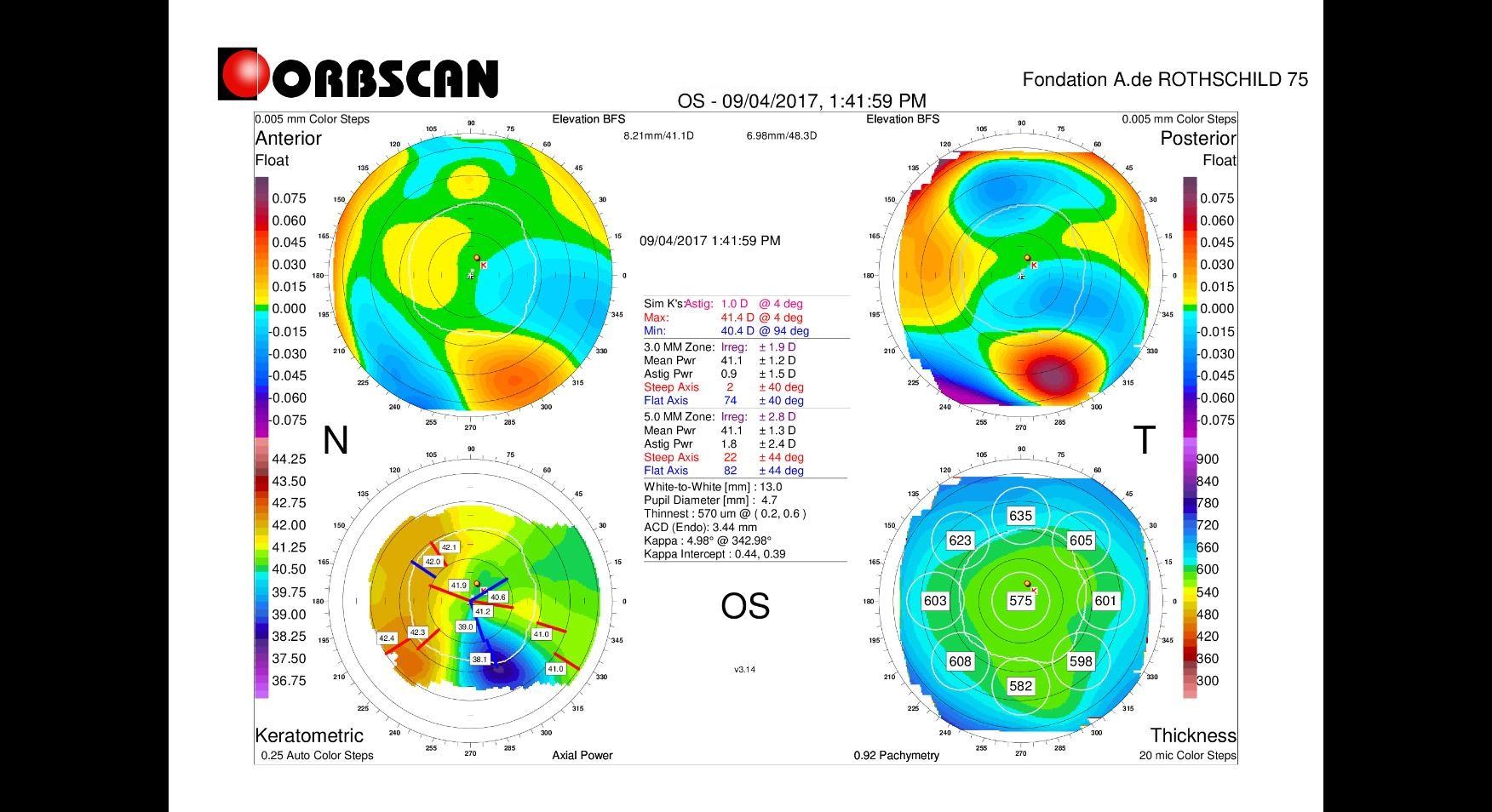 Orbscan map pellucid marginal degeneration PMD