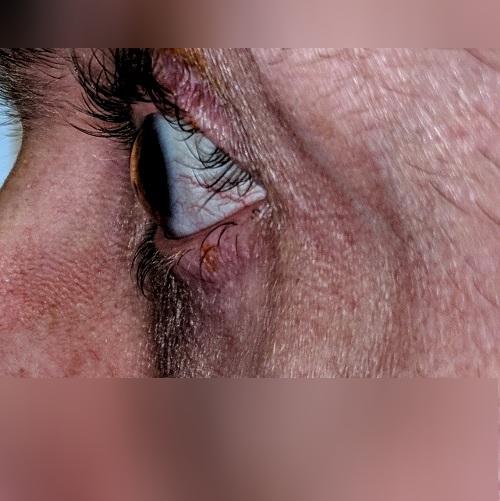 periorbital eczema keratoconus defeatkeratoconus.com